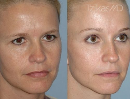 an overview of plastic surgery Also called cosmetic surgery, plastic surgery can improve your appearance and fight signs of aging the plastic & reconstructive surgery institute features some of the most experienced surgeons in the area and provides the most popular cosmetic surgery procedures those include face lifts, liposuction, body sculpting,.