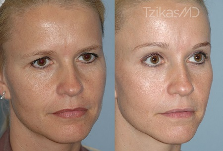 A Brief Overview of Facial Cosmetic Surgery Procedures