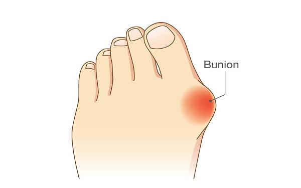 9 Common Foot Problems and How to Treat Them